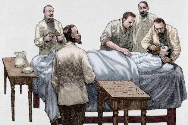 O clorofórmio começou a ser usado nas operações no final do século 19 (Foto: GETTY IMAGES via BBC)