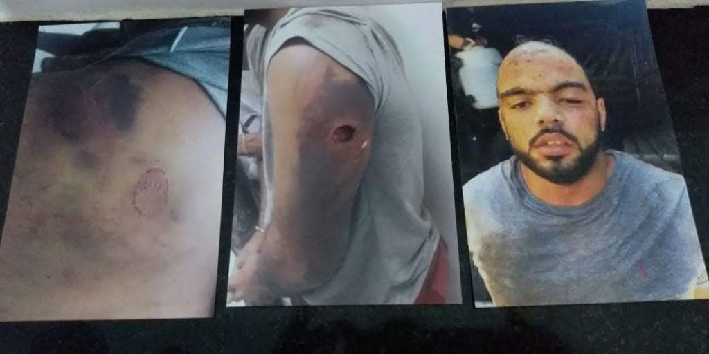 Defensoria Pública diz que, em um ano, 1.250 pessoas sofreram maus-tratos e tortura ao serem presas no RJ