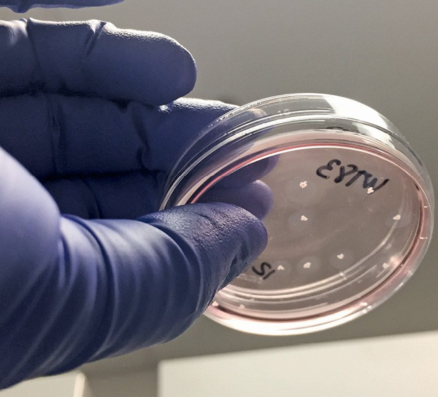 Um pontinho, um minicérebro de 4 meses e 500 mil células — 90% de neurônios (Foto: Divulgação)