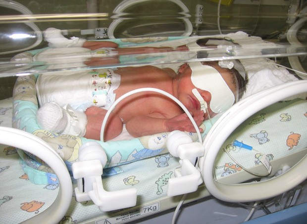 Manoela na incubadora (Foto: Acervo pessoal)