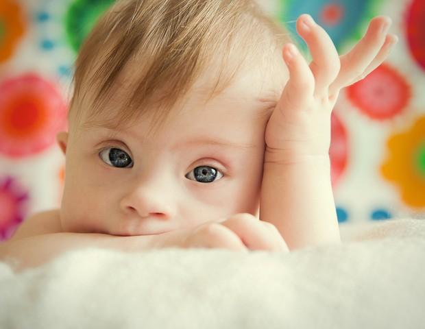 Síndrome de Down: confira os cuidados necessários (Foto: Thinkstock)