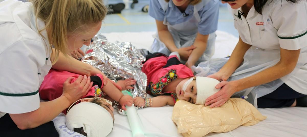 Gêmeas unidas pelo crânio são separadas depois de 50 horas de cirurgia