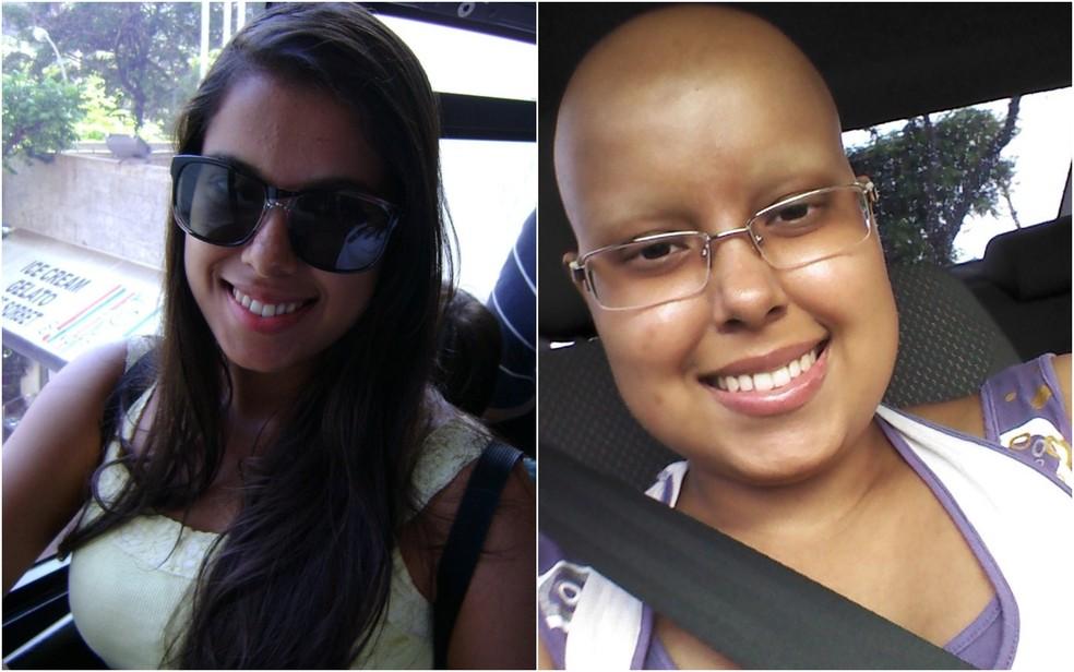 Alinne engordou 21 kg e teve e perdeu o cabelo durante o tratamento (Foto: Alinne Silva Barbosa/ Arquivo pessoal)