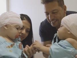NY: médico que ajudou separar siamesas no DF morre com Covid-19 (TV Globo/Reprodução )