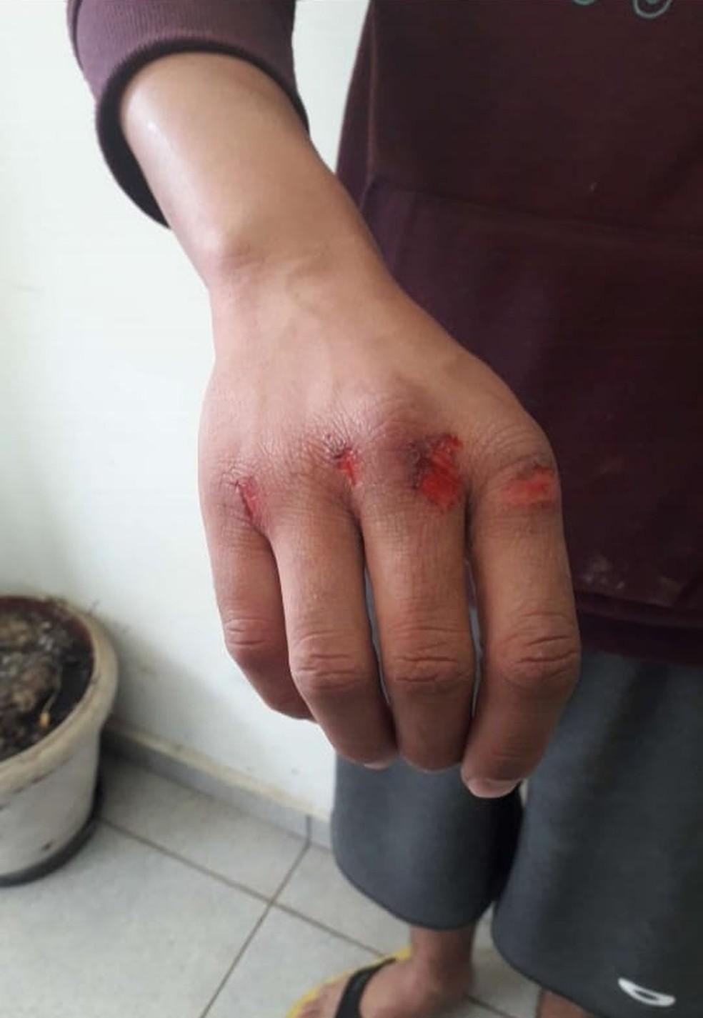 As agressões foram tão fortes que o homem machucou as mãos durante o ato de violência doméstica em Pirajuí (SP) — Foto: Polícia Civil/ Divulgação