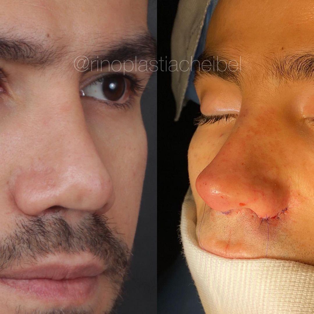Jakelyne e Mariano mostram resultado de rinoplastia (Foto: Reprodução/Instagram)