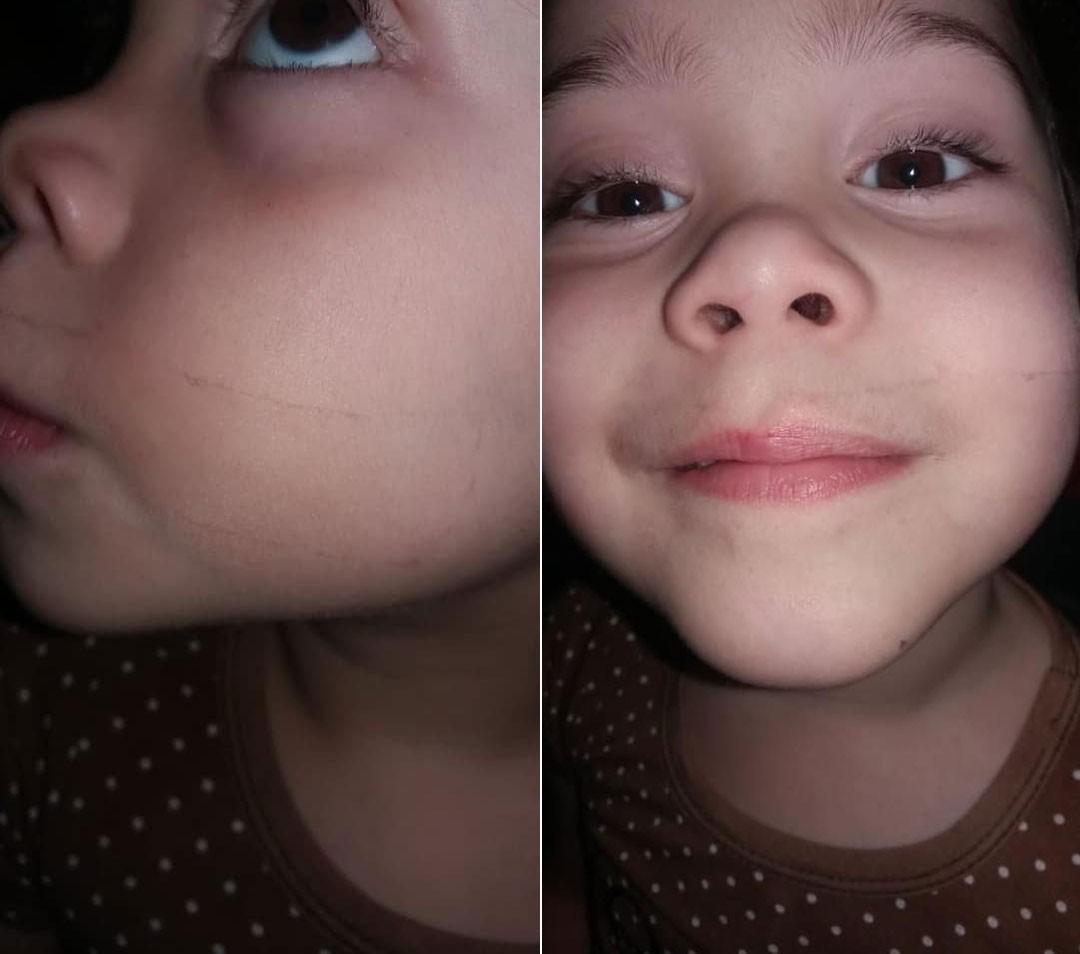 Noemi, 4 anos, com marcas de esparadrapo na boca (Foto: Reprodução/ Facebook Jéssica Araújo)