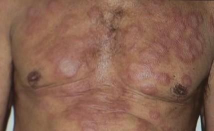 Mutirão para diagnóstico da hanseníase acontece em Campina Grande - Notícias - Plantão Diário