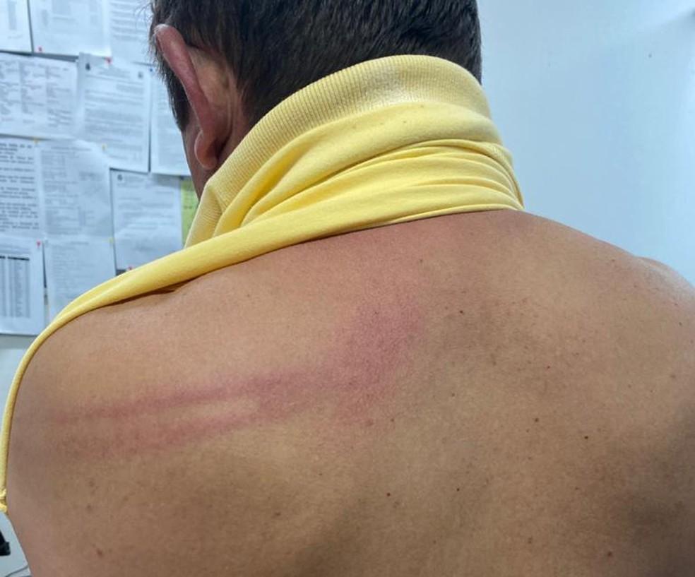 Prefeito realizou exame de corpo de delito — Foto: Reprodução