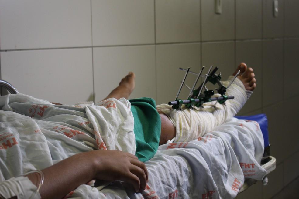 Adolescente quebrou a perna ao cair de estrutura lateral à ponte ferroviária em Castelo do Piauí (Foto: Catarina Costa/G1 PI)