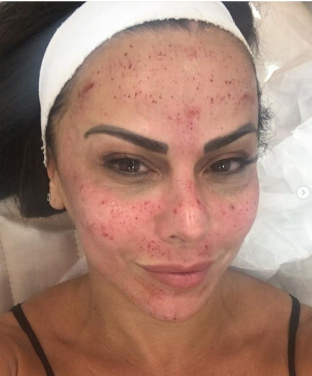 """Viviane Araújo faz tratamento de Kim Kardashian e mostra rosto com sangue: """"não se assustem"""""""