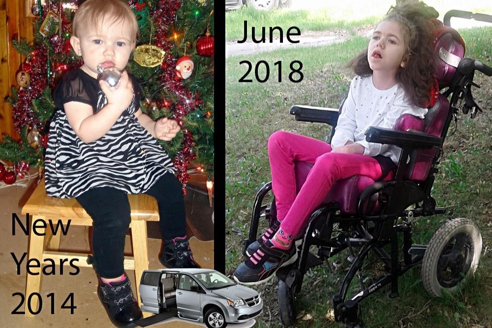 Arianna teve uma série de complicações por conta do rotavírus (Foto: Reprodução/Global News)