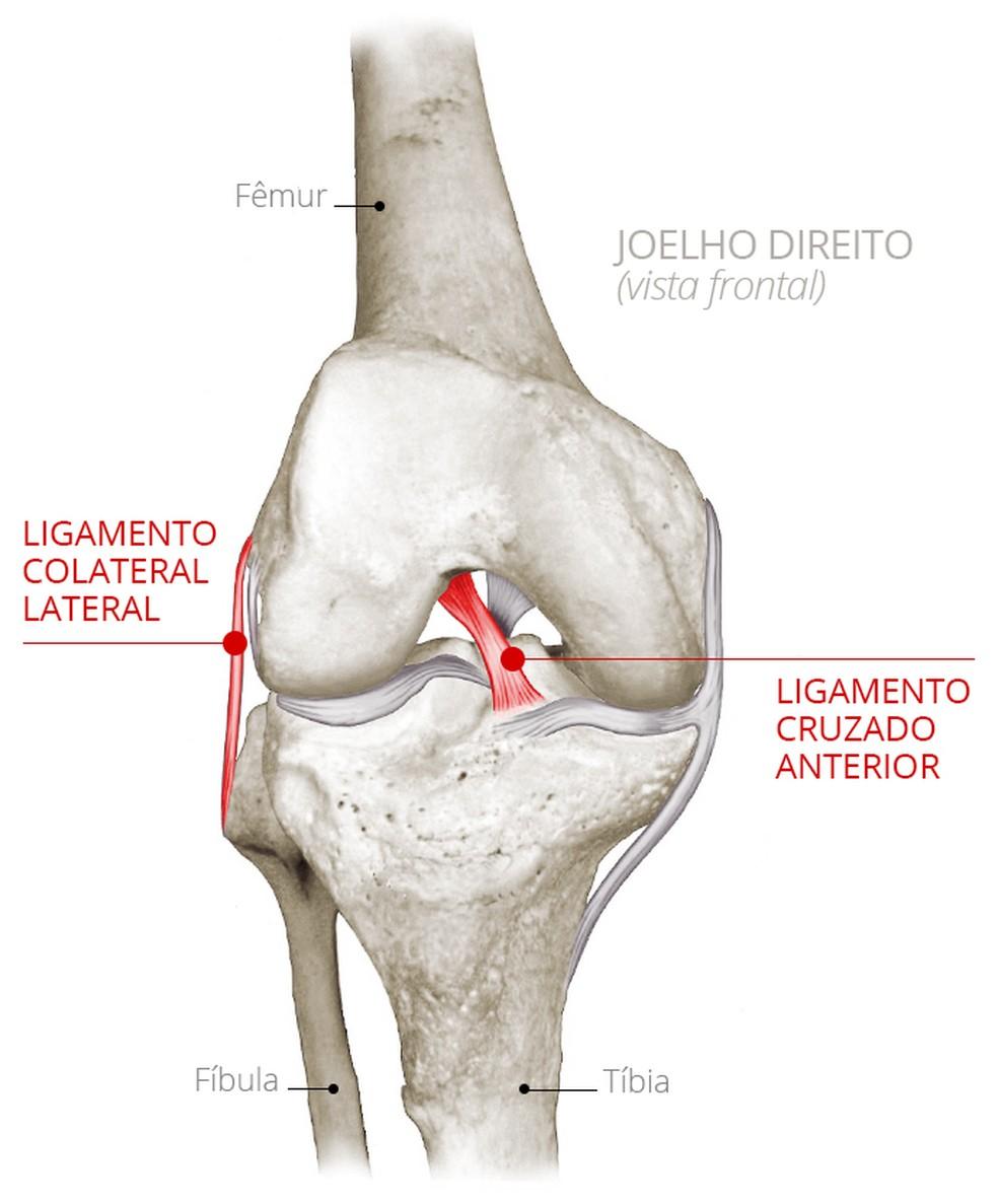 Infográfico revela posição do ligamento cruzado anterior que Jairinho sofreu lesão — Foto: Infoesporte