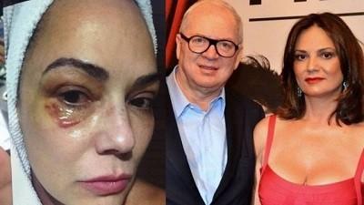 Luiza Brunet e o ex-marido, Lírio Parisotto