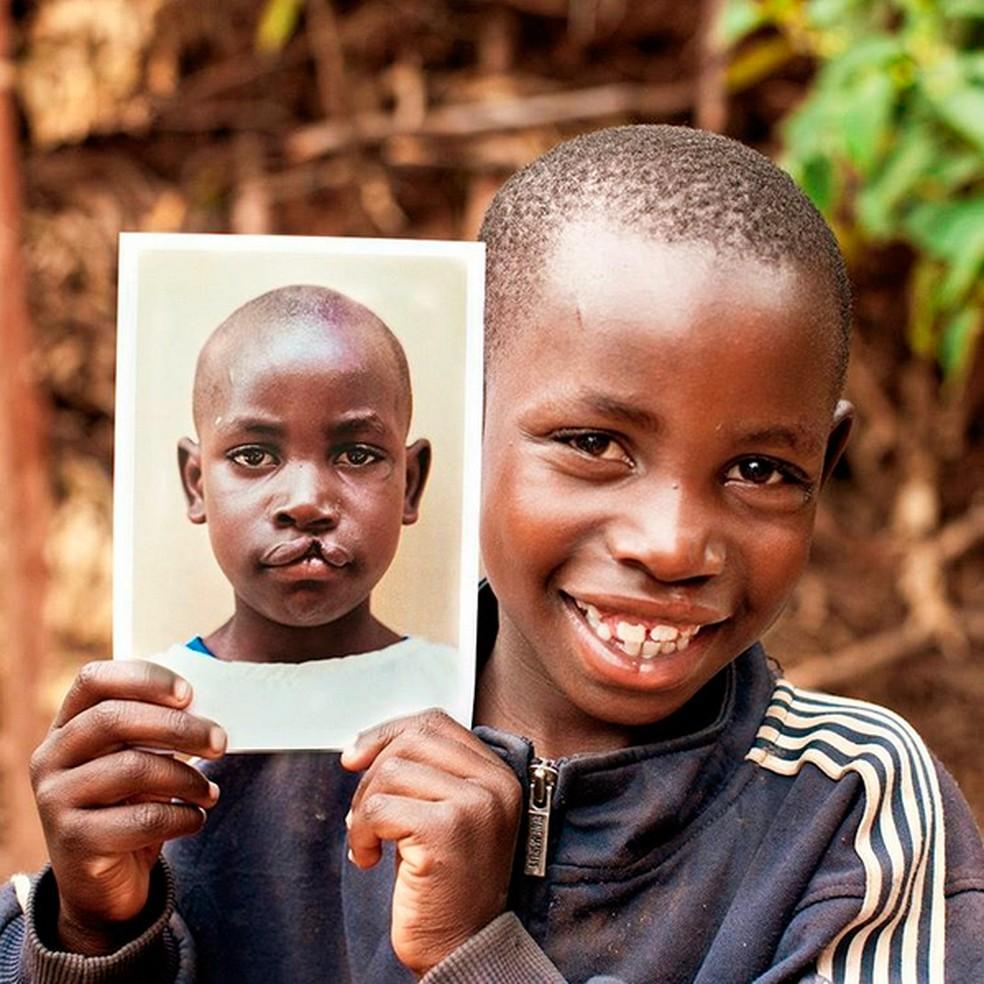 Operação Sorriso reúne profissionais de 60 países para ajudar pessoas nascidas com deformidades faciais (Foto: Marc Asher)