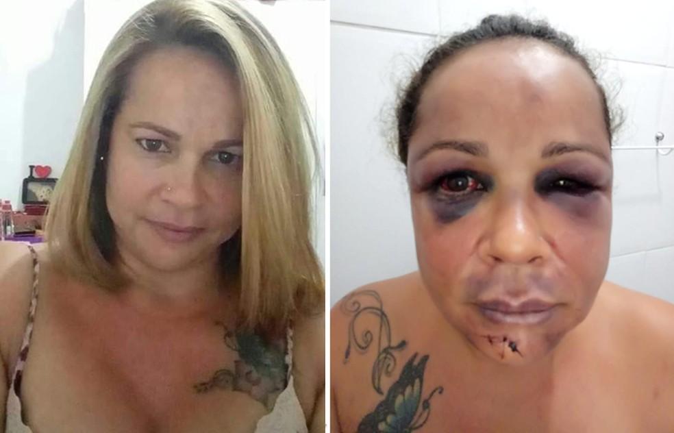 Rita antes e depois de ser espancada pelo ex-marido em Praia Grande, SP — Foto: Arquivo Pessoal