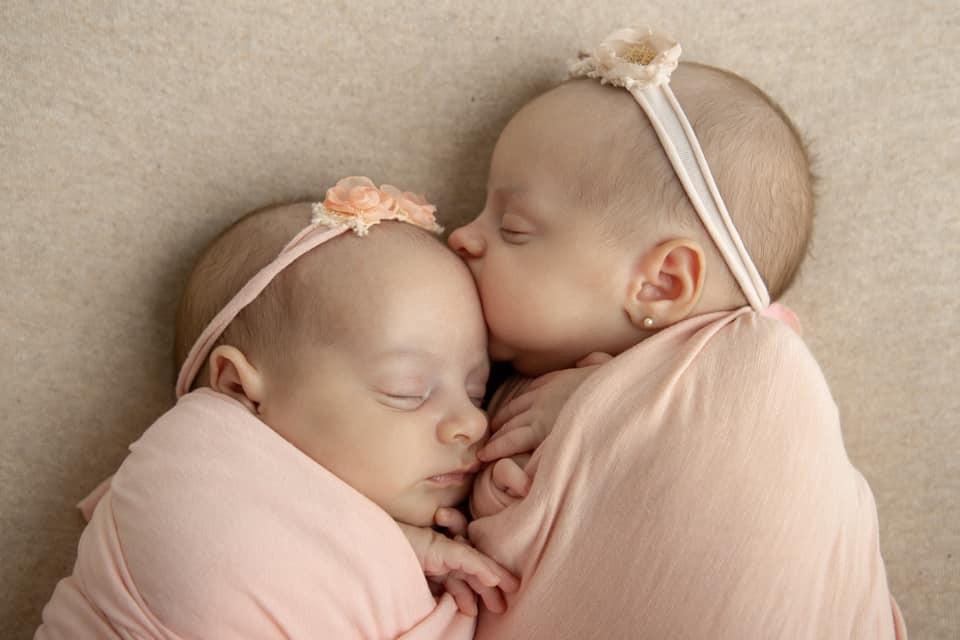 As gêmeas, hoje em dia, prestes a completar um mês de vida (Foto: Reprodução Facebook)
