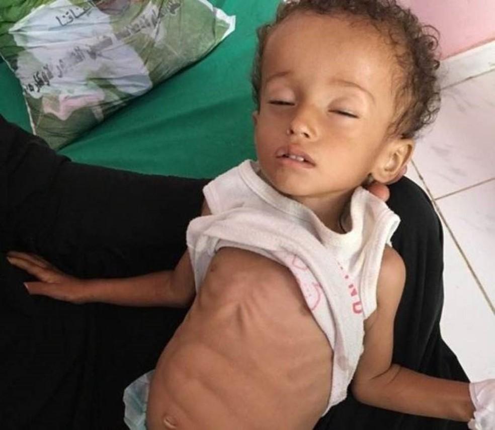Desnutrida, a menina Hussein Mazen Hussein luta pela vida (Foto: BBC)