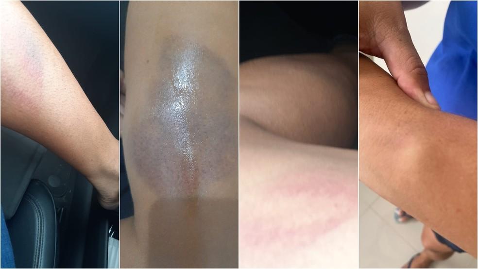 Mulher denuncia que foi torturada por seguranças dentro do Mix Mateus, após ser confundida, em São Luís | Maranhão | G1