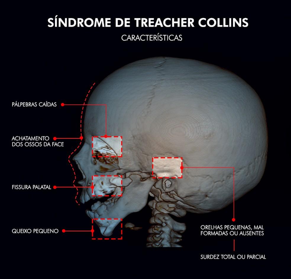 Síndrome de Treacher Collins é caracterizada por deformações no crânio e na face (Foto: Arte: Clayton Esteves/TV TEM)