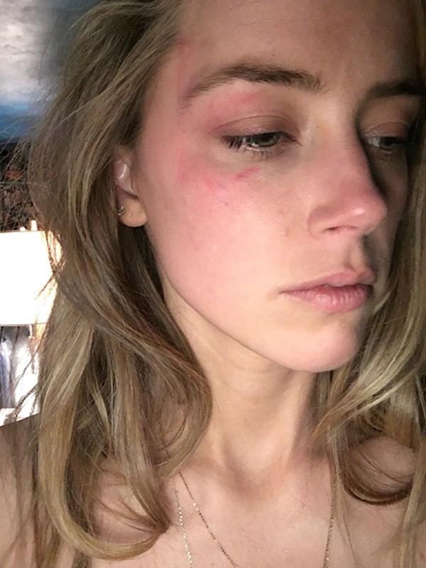 A atriz Amber Heard com machucados após as supostas agressões de Johnny Depp (Foto: Reprodução)