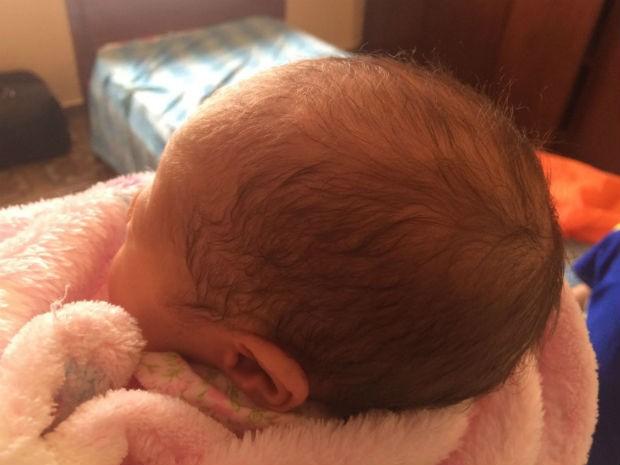 Bebê que caiu durante parto no Hospital de Ceilândia, no DF, ainda apresentava hematomas nesta segunda (25), com uma semana de vida (Foto: Arquivo pessoal)