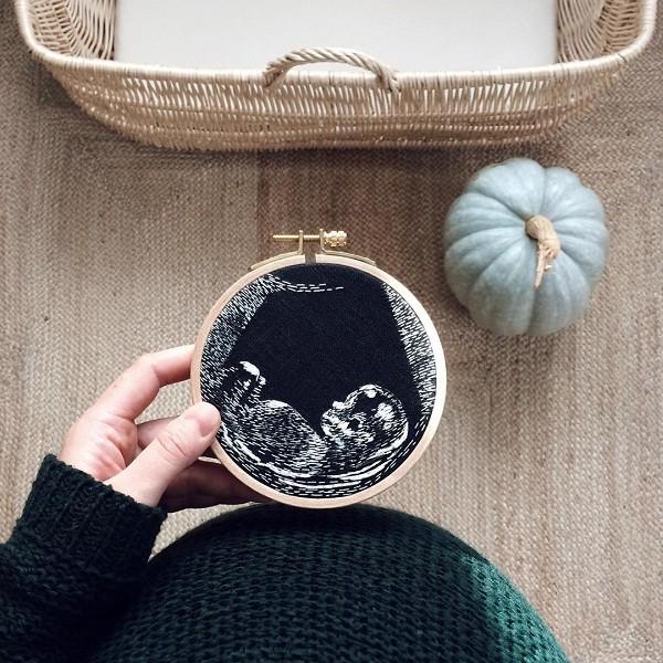 Bordado ultrasom (Foto: Reprodução/Instagram)