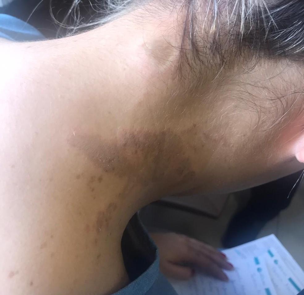 Tássia não conseguiu ver o rosto do agressor. â?? Foto: Arquivo pessoal