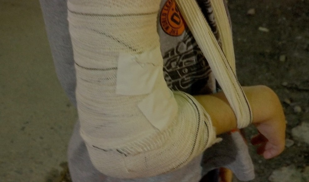 Criança teve o braço quebrado pelo acusado — Foto: TVCA/Reprodução