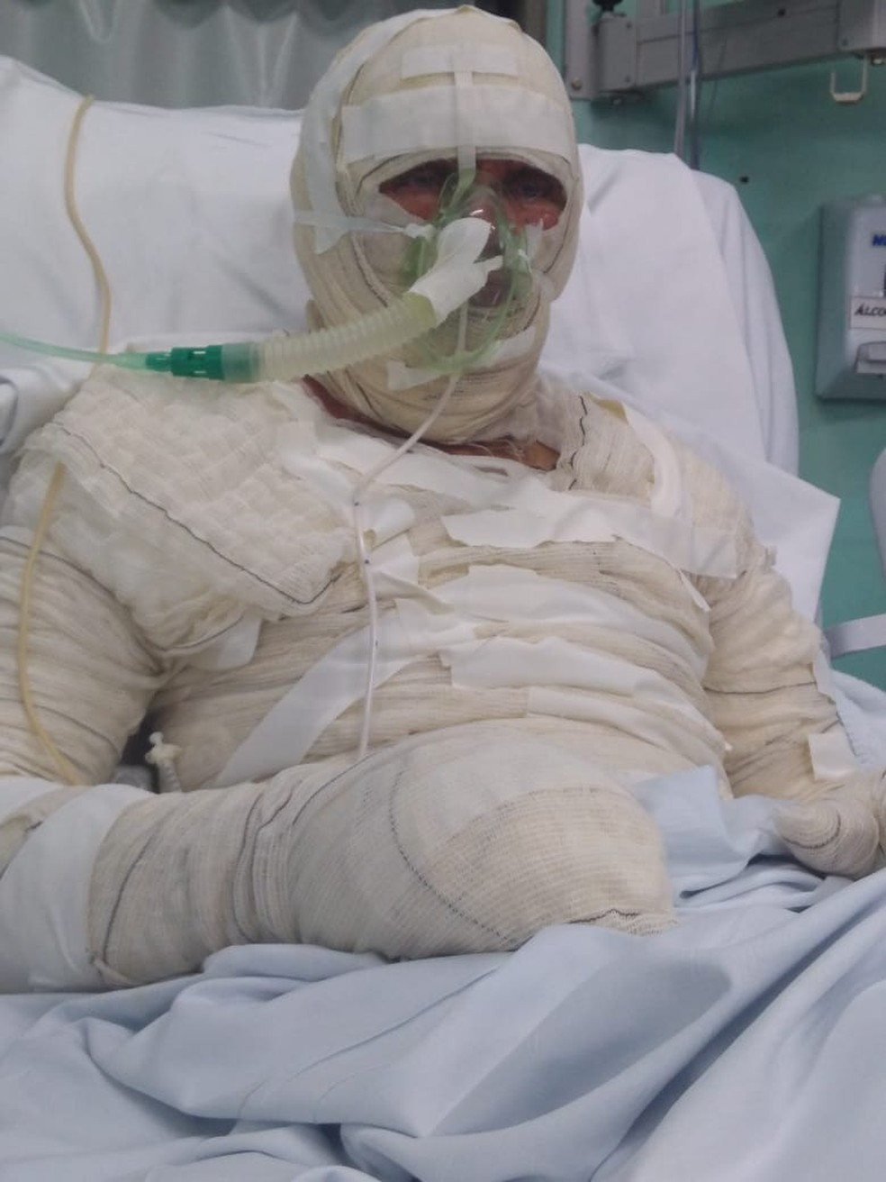 Ahail Gentil Moura teve parte do corpo necrosado e está na UTI do Hospital Instituto Dr. José Frota (IJF) — Foto: Arquivo Pessoal