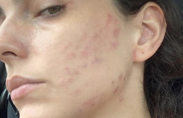 Julia Konrad vem falando bastante sobre a questão da autoaceitação durante o ano e publicando fotos sem maquiagem (Foto: Reprodução/Instagram)
