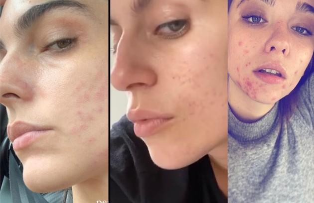 Em 2020, atrizes consideradas ícones de beleza mostraram que também sofrem de problemas na pele como acnes. Em publicações com o rosto sem maquiagem, elas discutiram autoaceitação e beleza irreal (Foto: Reprodução/Instagram)