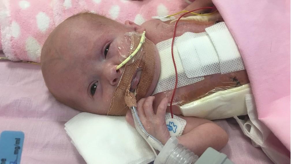 Condição da bebê britânica é extremamente rara e, muitas vezes, fatal (Foto: BBC)