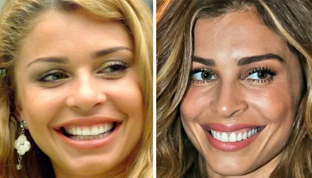 Antes e depois das lentes de contato dental em Grazi Massafera (Foto: TV Globo / Raphael Castello/AgNews)