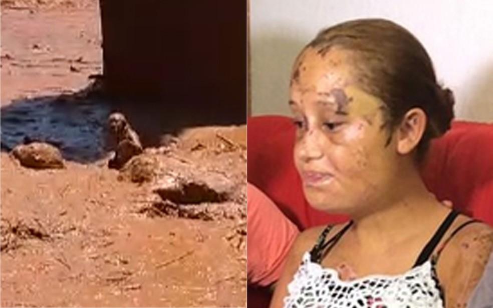 Paloma Prates da Cunha durante o resgate no lamaçal e 8 dias depois. Após 4 dias internada, está com o nariz e o osso esterno (peito) quebrados e o corpo cheio de hematomas, escoriações e cortes — Foto: Carlos Amaral/G1
