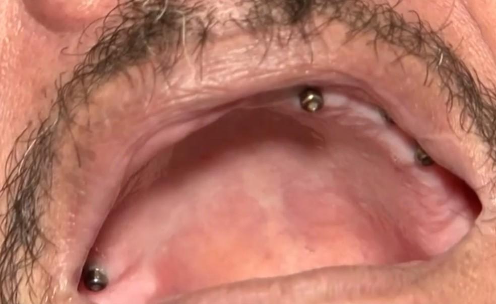 Homem teve nove dentes extraídos de uma só vez por falso dentista na Bahia  — Foto: Reprodução/TV Santa Cruz