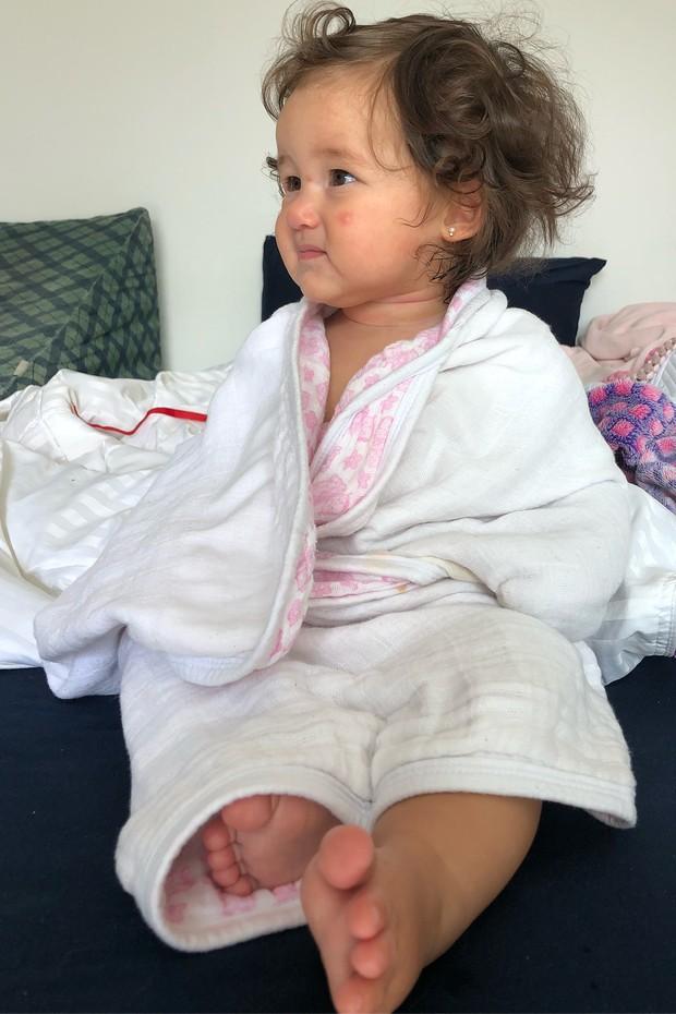 Madalena toma várias picadas de pernilongo (Foto: Reprodução/Instagram)